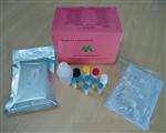 人白介素2受体(IL-2R)ELISA试剂盒